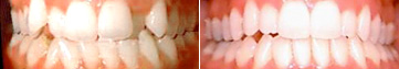 Severe Teeth Crowding